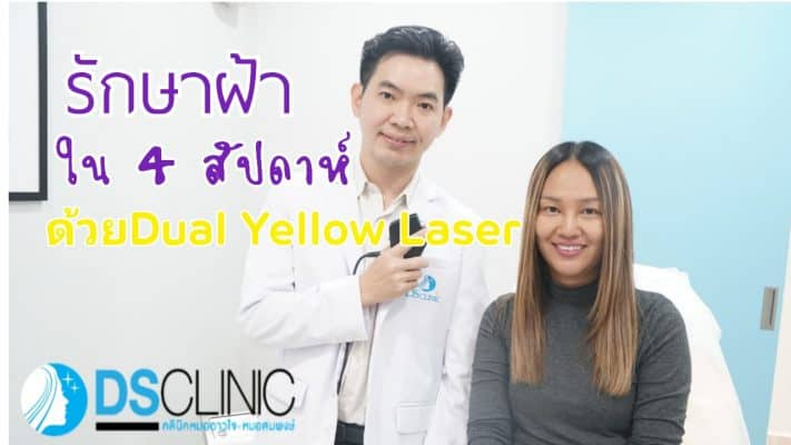 dualyellow laser